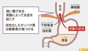 逆流性食道炎10